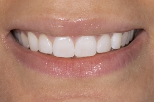 Christine Veneers & Whitening S Post 0017 2
