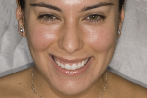 Christine Veneers F  Before Gum Liftb
