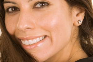 Christine Veneers F Post Crop 7
