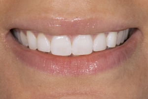 Christine Veneers S Post 0017 2