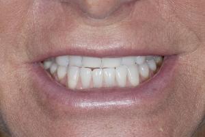 Chrisy Clear Aligners S 2010 9-8_DSC4155