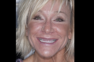 Chrisy Veneers & Orthodontics F  Before 4175 copy