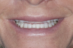 Chrisy Veneers & Orthodontics S 2010 9-8 4152