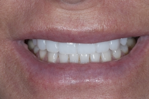 Chrisy White Veneers S After 8083