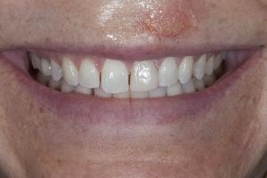 Claire Veneers & Orthodontics S B4 2155
