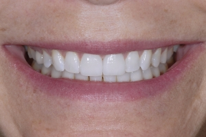 Claire Veneers & Orthodontics S Post 1113