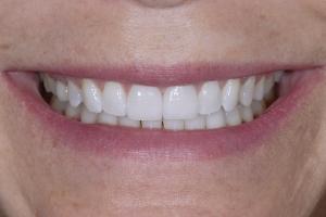 Claire Veneers & Orthodontics S Post 1113
