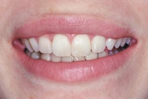 Courtney Laser Teeth Whitening S  Before 2