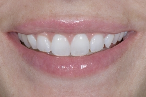Courtney Laser Teeth Whitening S After 2281