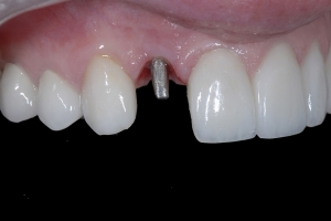Daiva-One-Piece-Implant-X-1_DSC1372