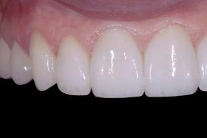Daiva-One-Piece-Implant-X121U-Post-121-7104