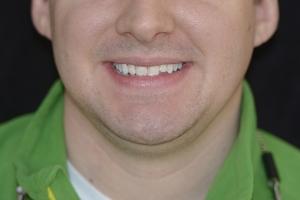Dan Natural Looking F B4 0981