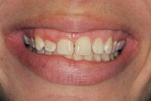 Danielle Gummy Smile S B4