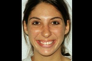 Danielle Gummy Smile F B4