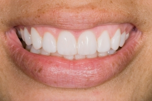 Danielle Veneers & Gum LiftS Post5