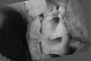 Darcel Implant Bone Graft Bone B4 1 0120
