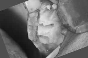 Darcel Implant Bone Graft Bone Bone B4 1 0121