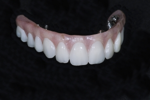 Darcell Implant Bridge Front Xx I Bridge 2422