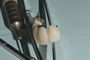 Darcell Implant Denture Xx Bridge
