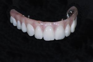 Darcell Implant Denture Xx I Bridge 2422