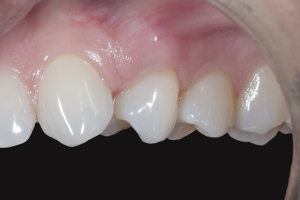 Dawn Gum Graft X121 Post 7103