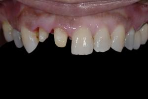 Delores-Smile-Tune-Up-X-121-B4-5922