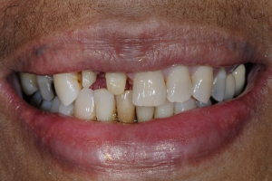 Delores-Smile-Tune-Up-S-B4-5926