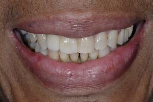 Delores-Smile-Tune-Up-S-Post-1077