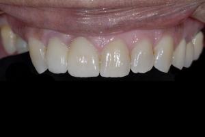 Delores-Smile-Tune-Up-X121-Post-1079