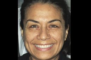 Denise-Veneers-F-Before1
