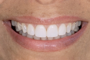 Denise Veneers & Orthodontics S Post