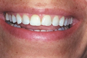 Denise Veneers & Orthodontics S b4 J&M002