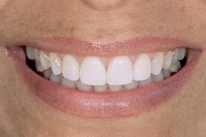 Denise Veneers & Orthodontics S Post