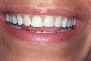 Denise Veneers & Orthodontics S b4 J&M002