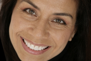 Denise Clear Aligners XF2 Post 1.23.06-045