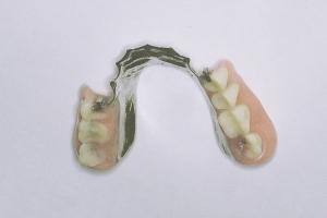 denture partial smile b2 4