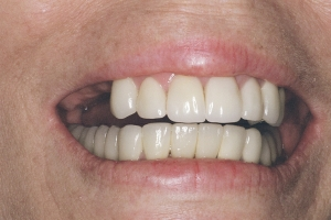 denture partial smile b4 1