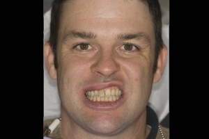 Ed F Grey Tooth Crown B4 016