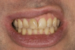 Ed S Grey Tooth Crown  Before 012