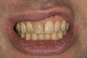 Ed Laser Teeth Whitening S  Before 0012