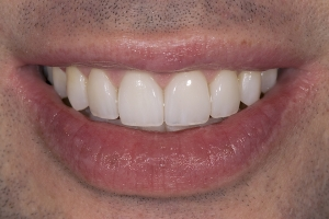 Ed Laser Teeth Whitening S After
