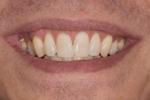 Ed Teeth Whitening S  Before  0066