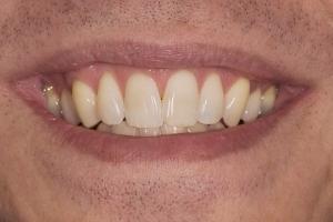 Ed Teeth Whitening S  Before 0066
