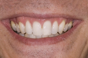 Ed Teeth Whitening S Post
