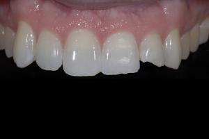 Ehrin X121 Whitening & Bonding  Before 9815