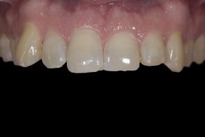 Ehrin X121 Whitening & Bonding  Before 4306