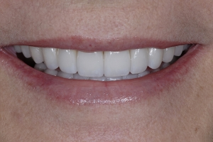 Eileen Full Mouth S Post 4609