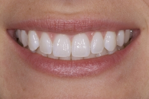 Elisabeth Invisalign S Post 0001