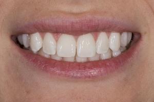 Elisabeth Laser Teeth Whitening S B4 0002