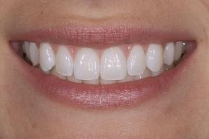 Elisabeth Laser Teeth Whitening S Post 0001
